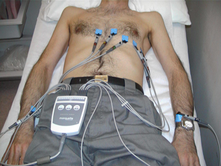 Electrodes placed on the patient's chest and limbs to obtain the ECG